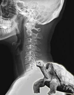 목 디스크 부르는 '거북목 증후군'