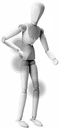 중년 엉덩이·다리 통증, 척추관협착증부터 의심해야