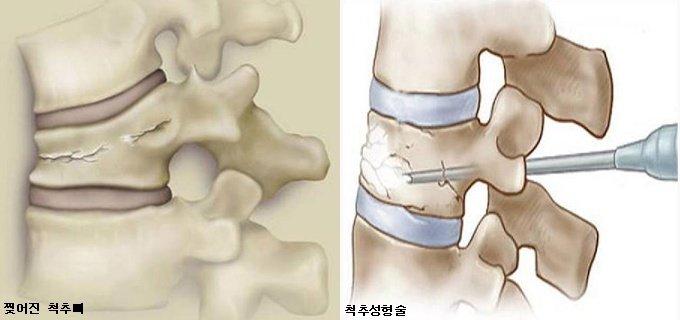 재채기에 무너진 척추 뼈 骨시멘트로 15분에 치료