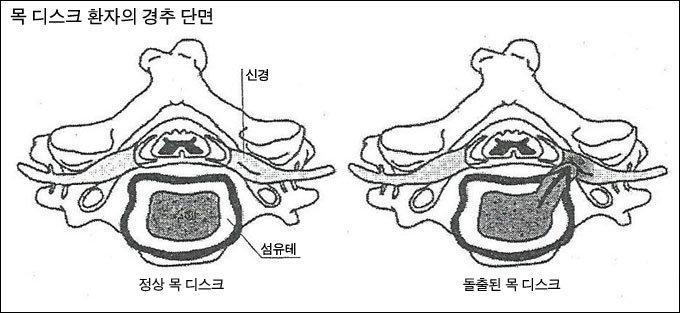신경성형, 고주파로 당일 치료 줄기세포 치료 각광