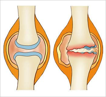 손상되면 재생 불가능한 연골 줄기세포 치료술로 근본 치유