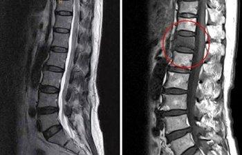 척추성형술로 수술 없이 치료