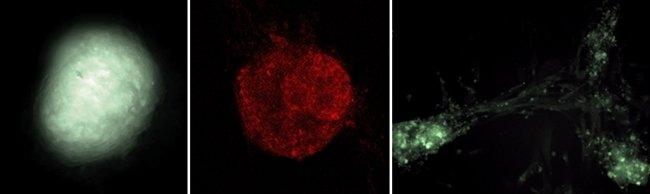차세대 신성장동력 만능줄기세포