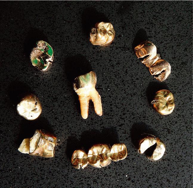 치과에서 뽑은 내 금니는 어디로?