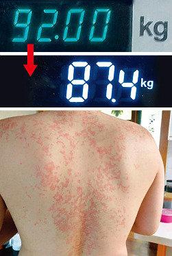 """'저탄고지' 다이어트 기자 체험기   """"몸무게 줄었다, 건강도 악화됐다"""""""
