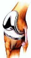퇴행성 관절염의 대안 '인공관절'