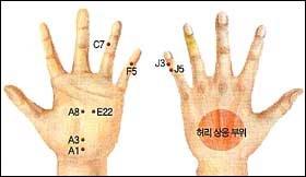 피하기 힘든 질병 '요통'… 심할 땐 A1, A3, A8, E22에 침