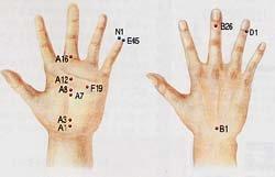 복통-발열 땐 E45, D1, N1 … 물, 소금도 보충해야