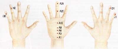 감기 예방 혈은 H2, I38… 목감기 심할 땐 J1, D1서 피 빼주면 효과