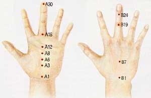 손발 저림은 목뼈·허리뼈 등 이상신호… 심할 땐 서암봉·T봉 붙이면 효과
