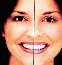 눈처럼 깨끗한 치아 만들기 오퍼스레이저 치료법 각광