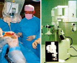 뼈 깎는 로봇의사 수술 부작용 '0'