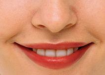 치아 틈새 감쪽같이 메우는 법