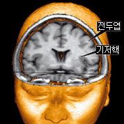뇌가 이상하면 어떤 행동 나올까