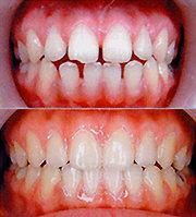 전신 비틀어지고 성격장애도…생활습관 개선 및 치아교정 병행해야