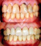 바쁜 일상 치아관리 소홀로 각종 치과 질환 불러