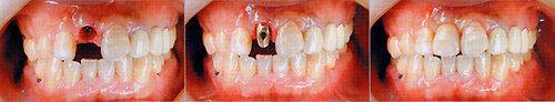 빠진 치아 방치했다간 소화장애, 치매 등 2차 질환 유발