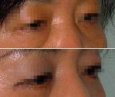 눈밑 지방 제거 시술은 짧게 효과는 길게