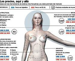 아르헨티나 성형관광 특수