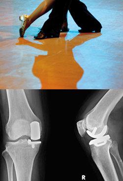 관절 '부분 교체'로 무릎이 춤춘다