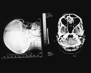 PART 2  두뇌 와 신경