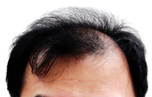 有備有毛, 대머리 확실히 피하는 법!