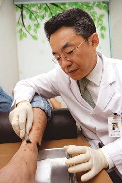 아토피보다 무서운 자반증(혈관염) 거머리 침샘이 특효