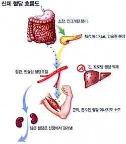 한국형 당뇨병 아우성