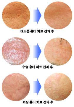 수술자국·여드름·화상흉터 마음의 상처에 새살 보송