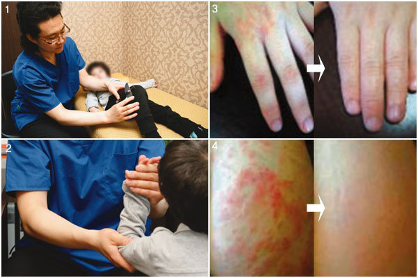 우리 아이 참기 힘든 통증 제거 韓方에서 가능성을 찾다!