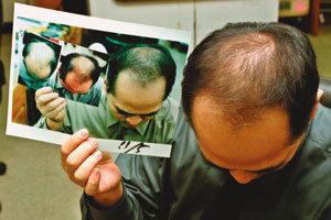 '毛난 사람'은 머리카락 날리고…
