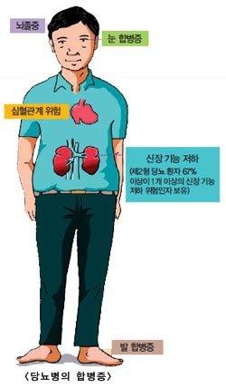 베링거인겔하임 당뇨 치료제 새 강자