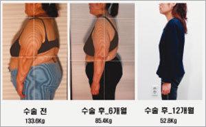 요요 없이 1년 30kg 체중 감량
