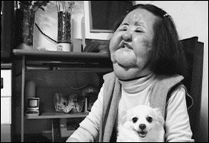 성형 중독의 참혹함 보여준 '선풍기 아줌마'한미옥씨의 안타까운 사연