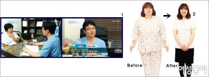 서울슬림외과 박윤찬 원장이 말하는 위밴드 수술의 실체