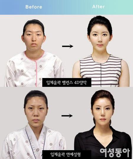 연예인 성형 전문가 정종필 신데렐라성형외과·치과 대표원장