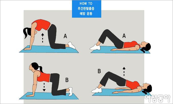 요통에 약이 되는 운동 vs 독이 되는 운동