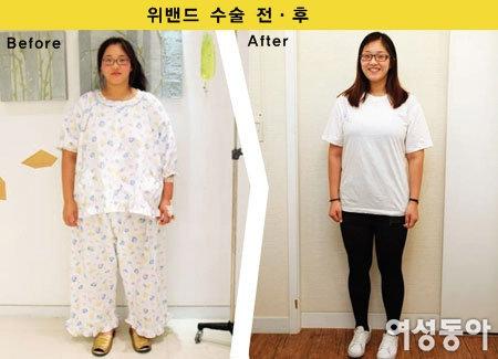 위밴드 수술법 특허 박윤찬 서울슬림외과 원장