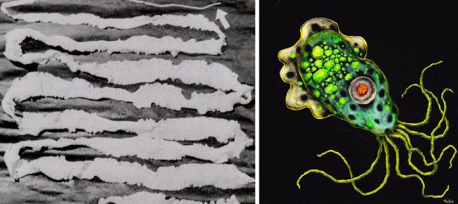6.6m 길이의 기생충인 광절열두 촌충(왼쪽). 뇌에 염증과 출혈을 일으키는 파울러자유아메마(오른쪽). [동아DB]