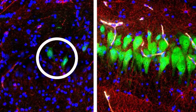 죽은 지 10시간 된 돼지 뇌를 분리해 해마 부위를 형광물질을 이용해 관찰했다. 왼쪽은 보통의 뇌, 오른쪽은 미국 예일대 연구팀이 '브레인엑스' 기술로 액체를 주입해 일부 뇌세포의 기능을 회복시킨 사진. 신경세포(원 안) 등의 분포 차이가 확연하다. [예일대 의대 제공]