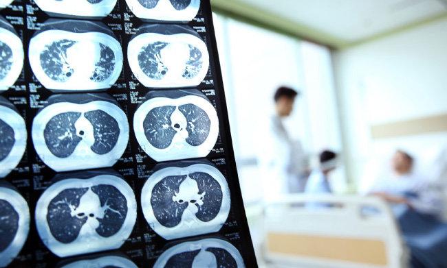 환자 폐를 촬영한 사진. [GettyImage]