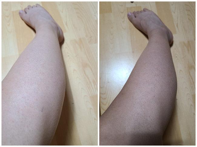 태닝 하기 전(좌) 5회 태닝 한 후(우)의 다리 비교. 육안으로 봐도 피부가 탔다.