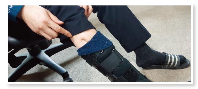 """사고로 18년째 오른쪽 다리에 보조기를 착용한 김형경 경사는 """"흉측하다""""며 상흔의 일부만 보여줬다. [조성식 기자]"""