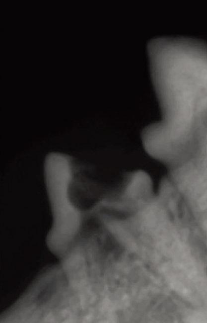 고양이의 치아 엑스레이 사진. [사진 제공 · 이영수]