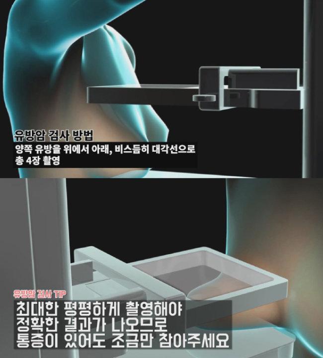 [유방 엑스레이 촬영검사 애니메이션 캡처]