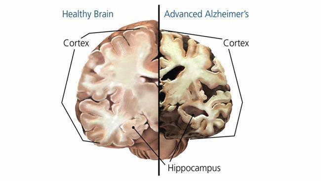 정상 뇌와 알츠하이머에 걸린 뇌. [brainfacts.org]