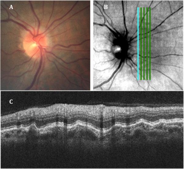우주 비행 후 눈 망막의 단층 촬영 결과, 망막신경 섬유층이 두꺼워지고 맥락막 주름이 심하게 나타났다. [출처·네이처]