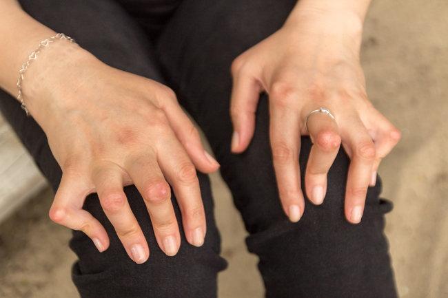 류마티스 관절염으로 관절에 변형이 생긴 여성의 손. [셔터스톡]