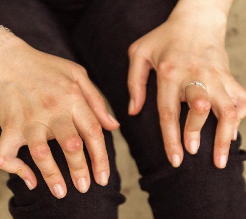 류마티스 관절염으로 관절에 변형이 생긴 여성의 손. [GettyImages]