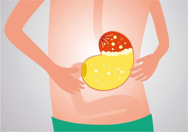 위식도역류질환은 위산이나 위 속 음식물이 식도로 역류해 가슴 안쪽에 타는 듯한 통증과 쓰림을 일으키는 질환이다. [GETTYIMAGES]